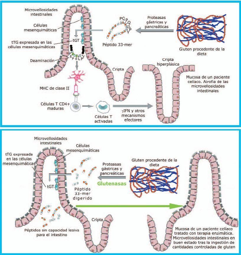 enfermedad celiaca tratamiento: